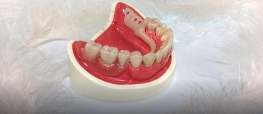 Gebiss, Zähne, Zahnersatz, © Pixabay (Symbolbild)