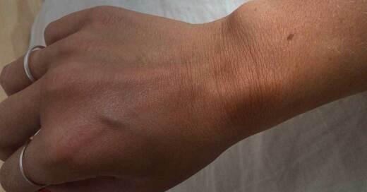 Muttermal, Leberfleck, Handrücken, © baden.fm