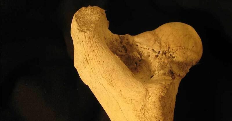 Hüftprothese, Knochen, Oberschenkel, © Pixabay (Symbolbild)