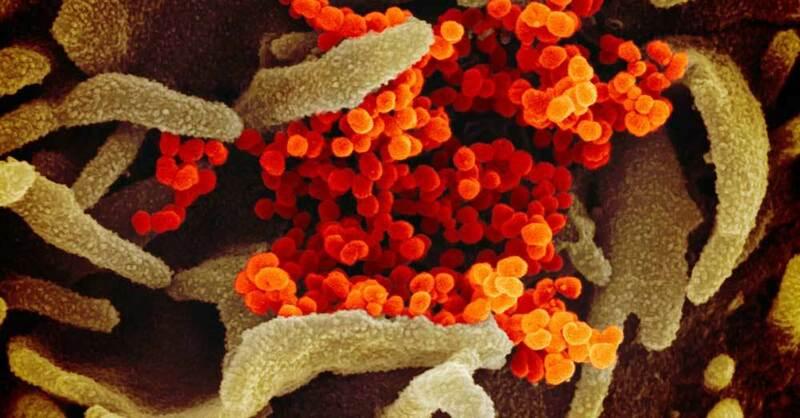 Corona, Virus, Erreger, Mikroskop, © --- / NIAID-RML / dpa